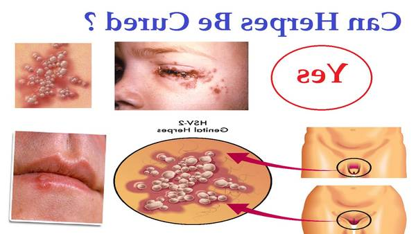 herpes labial fotos fases